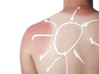 melanoma-risks-and-free-screening